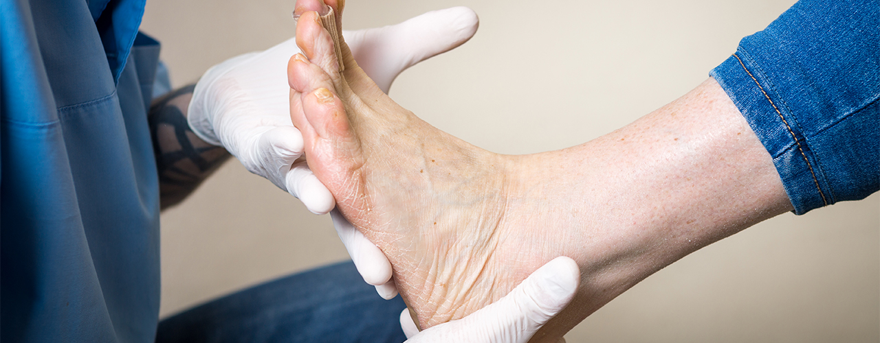 Orthotics Chicago, Beverly, Bridgeport, Glenview, Lincoln Park, Northwest Side Chicago, IL
